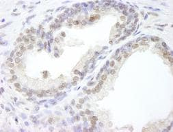 Immunohistochemistry (Formalin/PFA-fixed paraffin-embedded sections) - USP47 antibody (ab84531)
