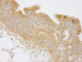 Immunohistochemistry (Formalin/PFA-fixed paraffin-embedded sections) - N myc interactor antibody (ab84553)