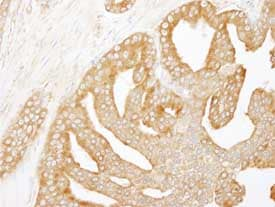 Immunohistochemistry (Formalin/PFA-fixed paraffin-embedded sections) - CORO1B antibody (ab84558)