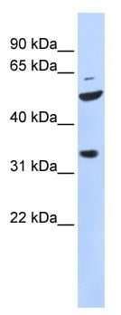 Western blot - TIS11D antibody (ab84592)