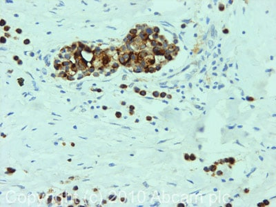 Immunohistochemistry (Formalin/PFA-fixed paraffin-embedded sections) - MUC1 antibody (ab84597)