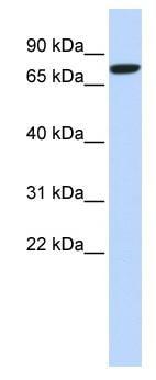 Western blot - DLL1 antibody (ab84620)