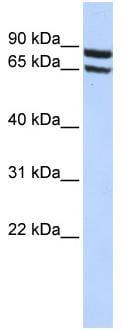 Western blot - SLC6A15 antibody (ab84621)