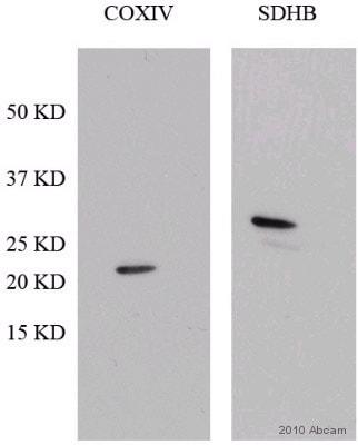 Western blot - SDHB antibody (ab84622)