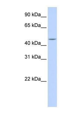 Western blot - Carboxypeptidase H antibody (ab84631)