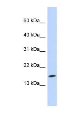 Western blot - UBE2D3 antibody (ab84640)