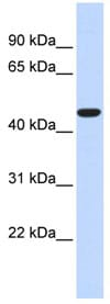 Western blot - acyl-CoA Thioesterase 2 antibody (ab84644)