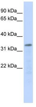 Western blot - POLR3F antibody (ab84667)