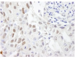 Immunohistochemistry (Formalin/PFA-fixed paraffin-embedded sections) - ZHX3 antibody (ab84677)