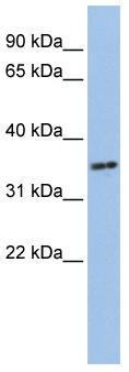 Western blot - PHF13 antibody (ab84693)