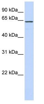 Western blot - CKAP4 antibody (ab84712)