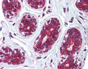Immunohistochemistry (Formalin/PFA-fixed paraffin-embedded sections)-Anti-CKAP4 antibody(ab84712)