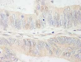 Immunohistochemistry (Formalin/PFA-fixed paraffin-embedded sections) - MYBBP1A antibody (ab84718)