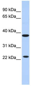 Western blot - KLRA1 antibody (ab84723)
