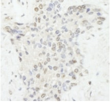 Immunohistochemistry (Formalin/PFA-fixed paraffin-embedded sections) - DNA Ligase III antibody (ab84749)