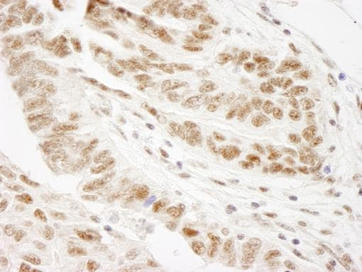 Immunohistochemistry (Formalin/PFA-fixed paraffin-embedded sections) - WTAP antibody (ab84875)
