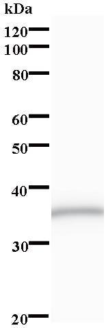 Western blot - ZNF3 antibody [3405C2a] (ab84885)