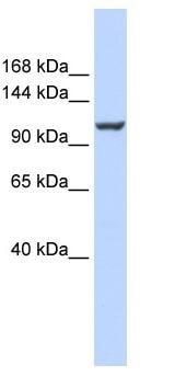Western blot - Calcium Pump PMCA4 ATPase antibody (ab84895)