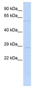 Western blot - MRPL10 antibody (ab84897)