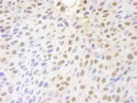 Immunohistochemistry (Formalin/PFA-fixed paraffin-embedded sections) - PARP10 antibody (ab84917)