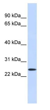 Western blot - PRRG1 antibody (ab84931)