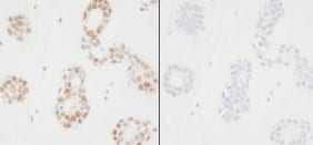 Immunohistochemistry (Formalin/PFA-fixed paraffin-embedded sections) - PCNA (phospho Y211) antibody (ab85000)