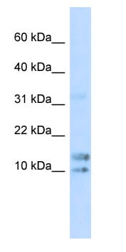 Western blot - IL15 antibody (ab85010)