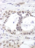 Immunohistochemistry (Formalin/PFA-fixed paraffin-embedded sections) - DHX15 antibody (ab85028)