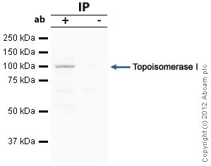Immunoprecipitation - Anti-Topoisomerase I antibody (ab85038)