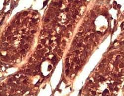 Immunohistochemistry (Formalin/PFA-fixed paraffin-embedded sections) - PIWIL2 antibody (ab85084)