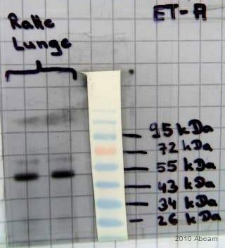 Western blot - Endothelin A Receptor antibody (ab85163)