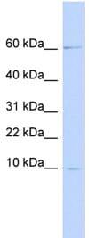 Western blot - Elafin/Skalp antibody (ab85187)