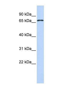 Western blot - FLJ31875 antibody (ab85190)
