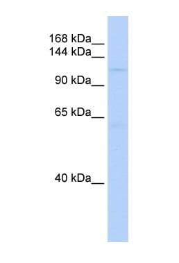 Western blot - Sin3b antibody (ab85192)