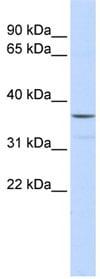 Western blot - ZNF787 antibody (ab85197)
