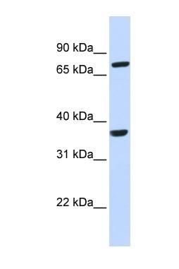 Western blot - CCRL2 antibody (ab85224)