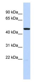 Western blot - HTR3C antibody (ab85290)