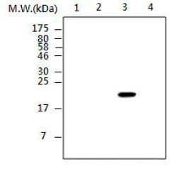 Western blot - DUSP28 antibody [AF16B7] (ab85328)