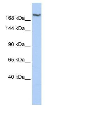 Western blot - Dscam antibody (ab85362)