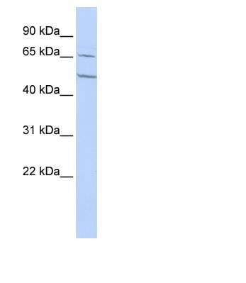 Western blot - Nicotinic Acetylcholine Receptor alpha 4 antibody (ab85373)