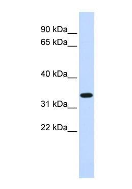 Western blot - TRIM14 antibody (ab85374)