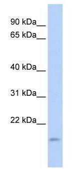 Western blot - TNFAIP8L1 antibody (ab85409)