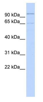 Western blot - Zinc finger protein 30 antibody (ab85411)