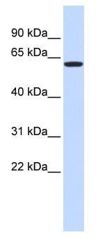 Western blot - ZNF161 antibody (ab85414)