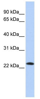 Western blot - SDF2 antibody (ab85417)