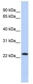 Western blot - SDF2 antibody (ab85417)