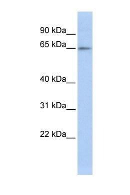 Western blot - ZNF619 antibody (ab85422)