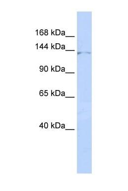 Western blot - ZNF445 antibody (ab85423)