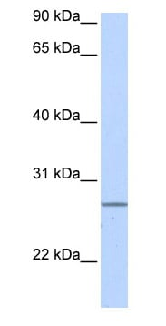 Western blot - GRPEL2 antibody (ab85428)