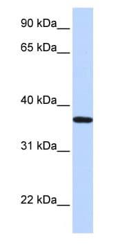Western blot - LCN12 antibody (ab85430)